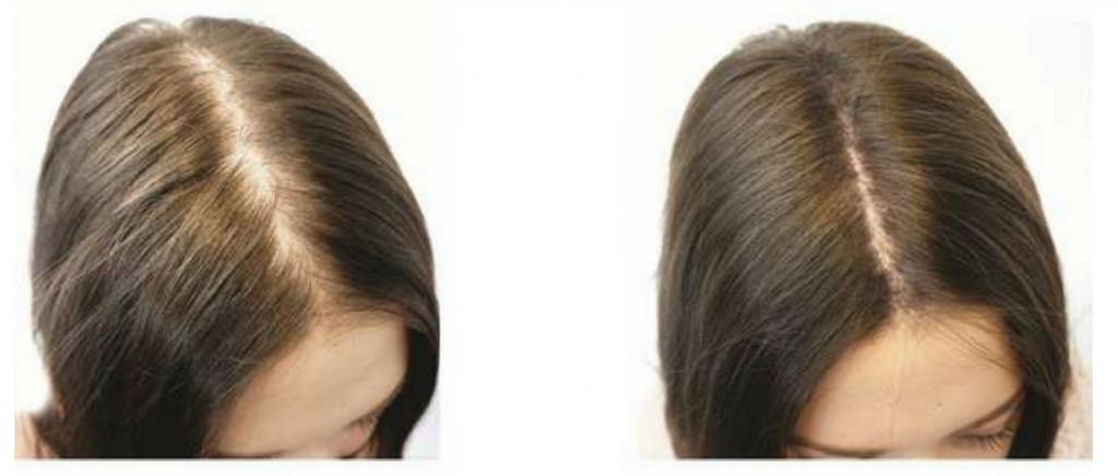 programme reconstruction capillaire, chute cheveux, calvitie, faire pousser cheveux