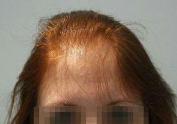 alopécie temporale, cheveux degarnis, chute cheuveux