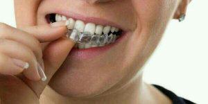 blanchiment des dents, blanchir dents, blanchiment dent au laser, kit gouttières