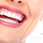 Lisez la suite afin de découvrir les conseils de beauté pour avoir un sourire radieux !