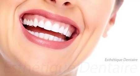 Conseils de beauté pour avoir un sourire radieux
